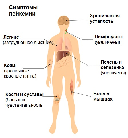 leukemia symptoms