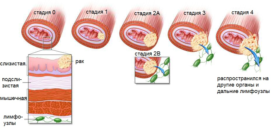 stages-esophagus-cancer