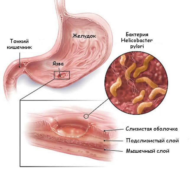 Противовирусные таблетки для лечения ангины